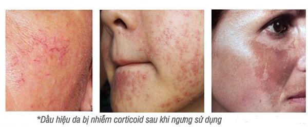Phục Hồi Da Nhiễm Corticoid Vitamin B5 Butiq Lab